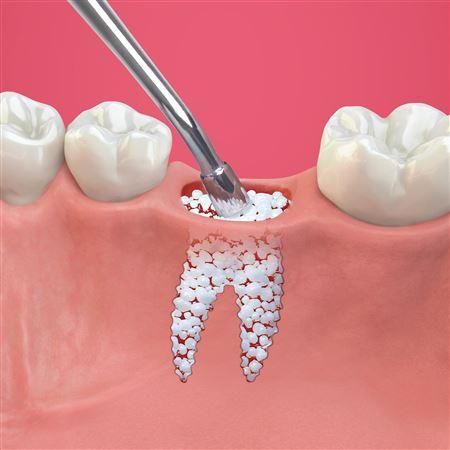 Guidor Easy Graft Bone Grafting System Small Practicon