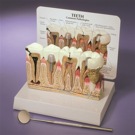 Tooth Pathologies Model/Chart
