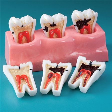 Caries Progression Model