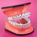 Oversize Orthodontic Demonstrator Model And Toothbrush Set