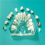 10-Case Treatment Model with Implant